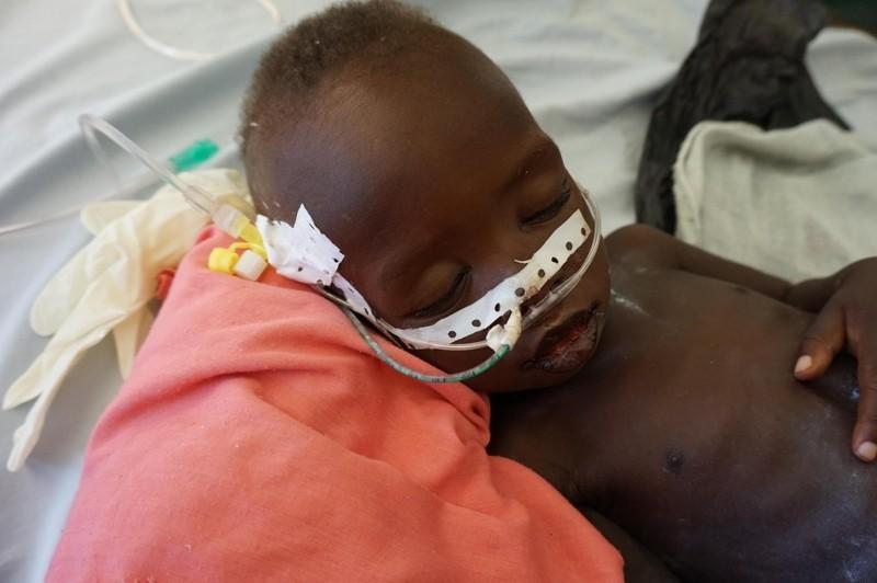 UNICEF Sudan Walka o życie Jamesa trwa