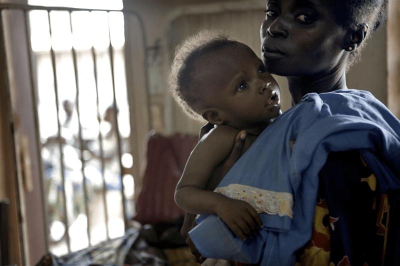 Niedożywienie dzieci w Republice Środkowoafrykańskiej