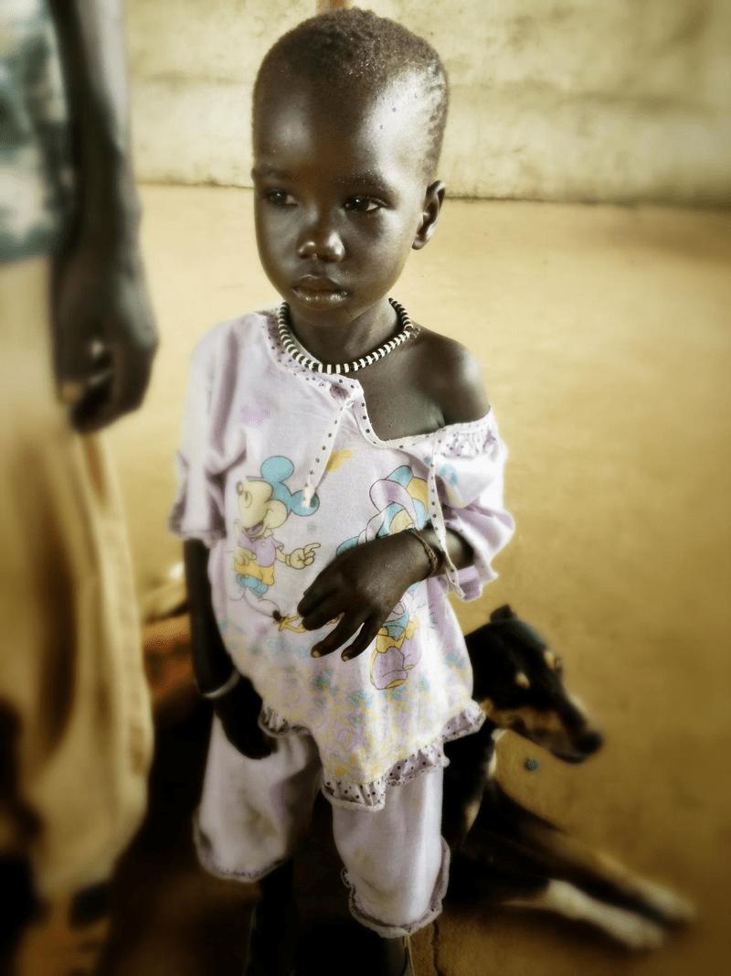 Sudan Południowy – trzyletnia Nyakhat Pal