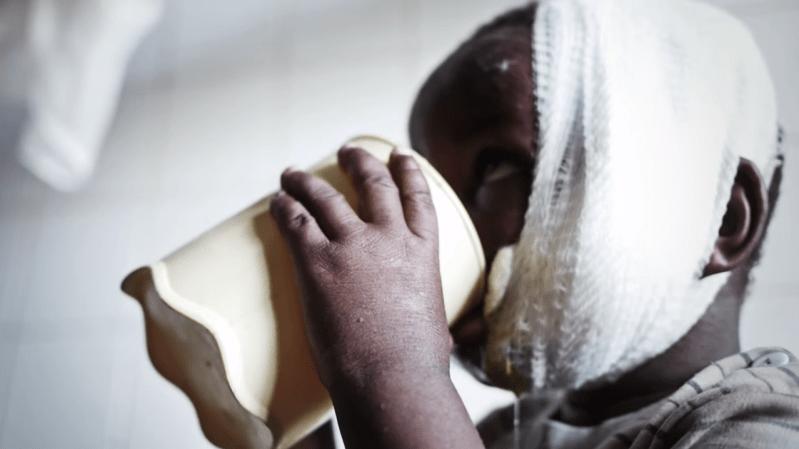 BANGUI, Republika Środkowoafrykańska Postrzelony 3-letni Alexis walczy o życie