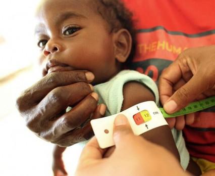 UNICEF: Głód zagraża milionom dzieci w Afryce. Katastrofalne skutki El Niño