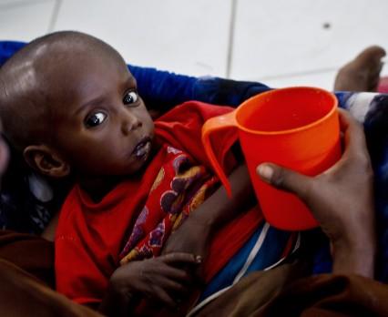 Liczba skrajnie niedożywionych dzieci w Somalii wzrosła o 50%