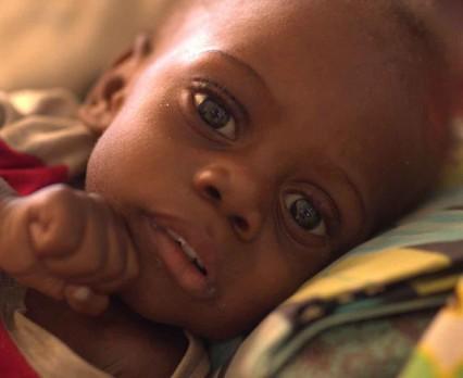 Głód zabija dzieci w Afryce Wschodniej iPołudniowej! UNICEF Polska apeluje o pomoc