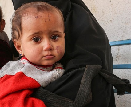 Ponad 6 milionów dzieci w Syrii nie zna innej rzeczywistości niż wojna. UNICEF Polska apeluje o pomoc.