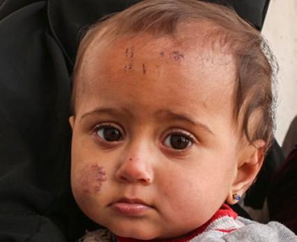 UNICEF: 2018 rok był tragiczny dla dzieci w Syrii. Wojna w tym kraju trwa już 8 lat