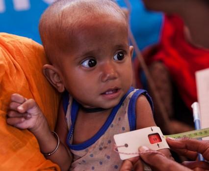 UNICEF Polska - Katastrofalny wpływ pandemii na niedożywienie u dzieci
