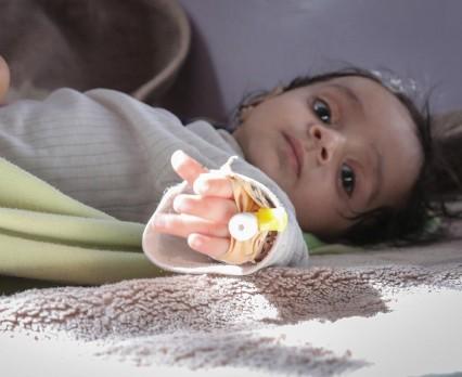 Poważne niedożywienie zagraża życiu połowy najmłodszych dzieci w Jemenie