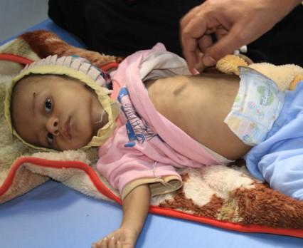 UNICEF: Sytuacja humanitarna w Jemenie jest dramatyczna