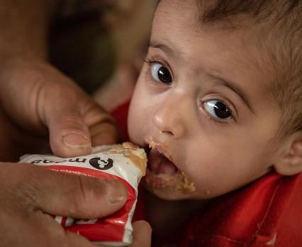 UNICEF Polska - Świat przegrywa walkę z niedożywieniem